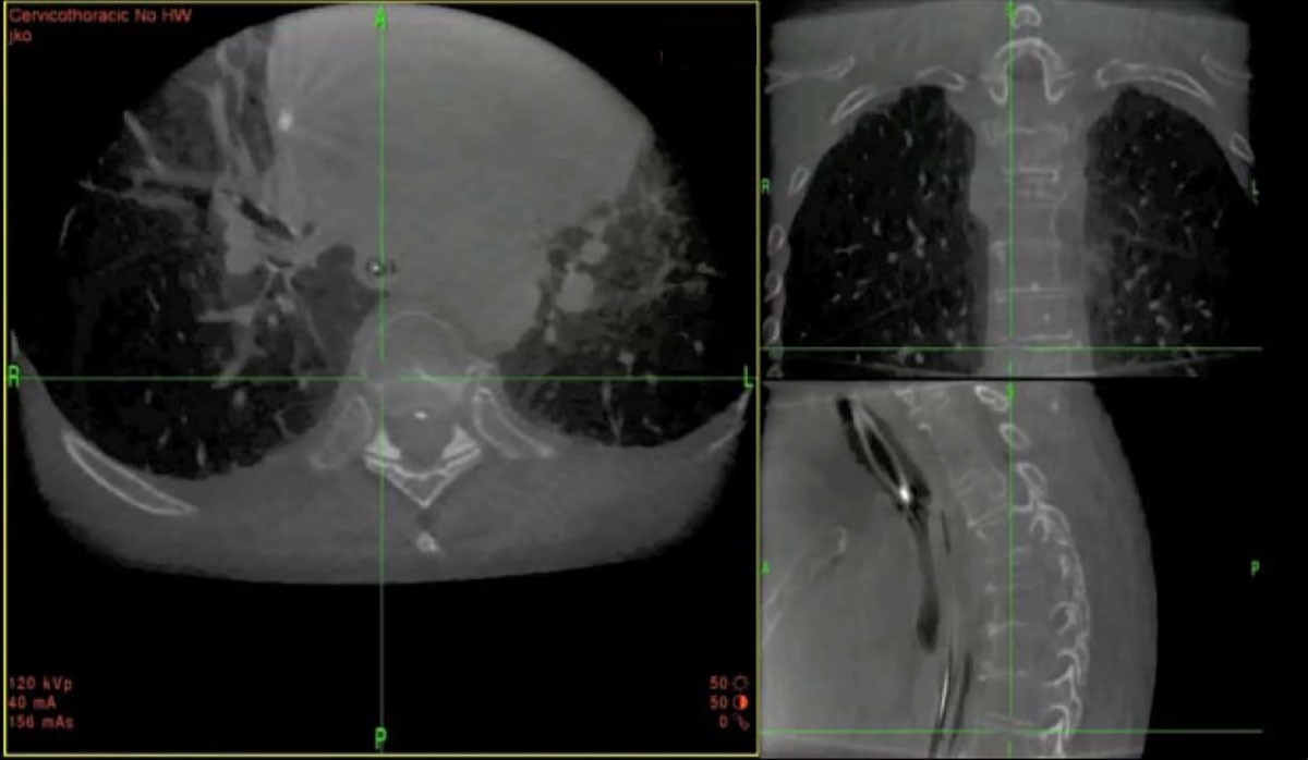 O-arm system imaging of cervicothoracic junction confirmation.